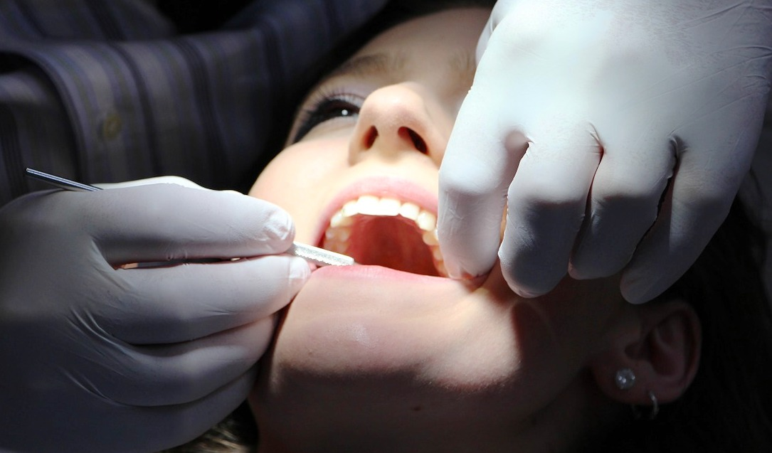 New Amazingly Simple Things You Can Do to Prevent Cavities for good oral taking